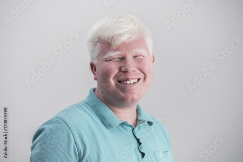 Photo Albino young man portrait