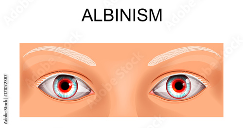 Obraz na plátne  the eyes of a person suffering from albinism