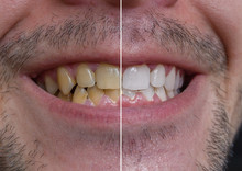 Teeth Whitening Concept. Smili...