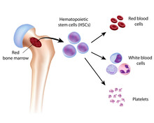 Blood Cell Formation From Bone...