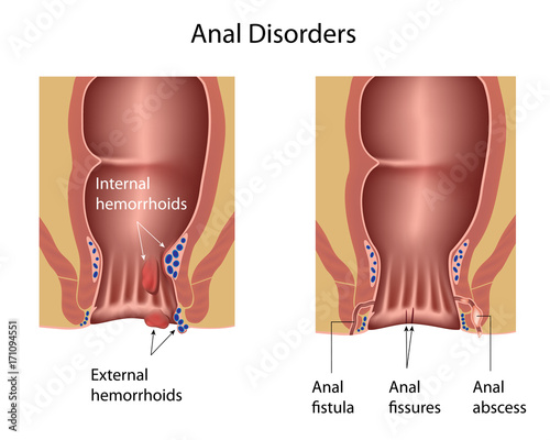 Anal disorders: hemorrhoids, fistula, fissures, abscess Wallpaper Mural