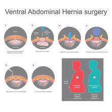 Ventral Hernia Is A Bulge Of Tissues Through An Opening Of Weakness Within Your Abdominal Wall Muscles. Info Graphic Vector.