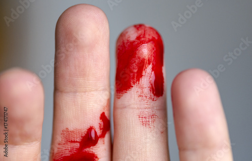Wounded finger, arm with blood, bleeding Wallpaper Mural
