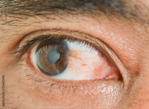 Photo Eye pterygium in old women