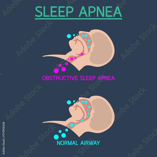 Sleep Apnea vector icon illustration Canvas Print
