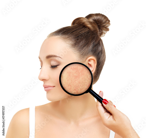 Foto  Post-Acne Marks /Treating Acne Scars
