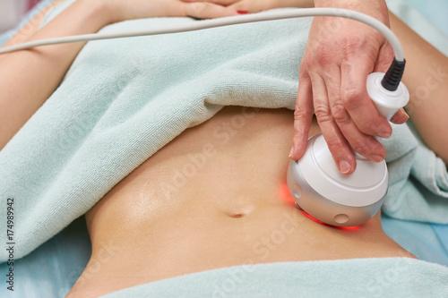 Fotografía  Rf skin tightening, belly