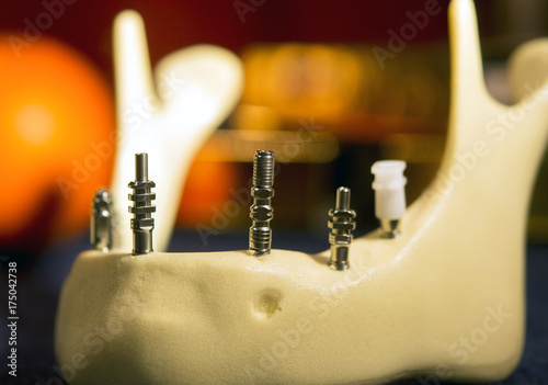 Photo titanium abutments in the artificial jawbone close-up
