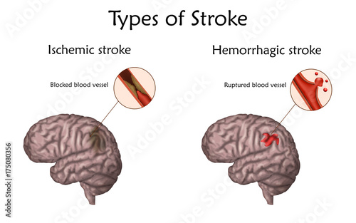 Human brain blood vessel diagram introduction to electrical wiring human brain blood vessel diagram images gallery ccuart Gallery