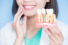 Woman Dentist Take Implant Tooth