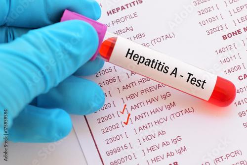 Obraz Blood sample with requisition form for hepatitis A virus (HAV) test  - fototapety do salonu