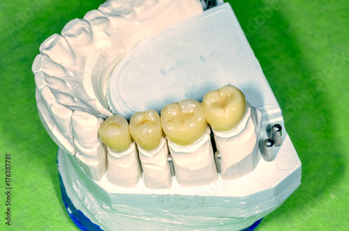 Fotografia, Obraz  zirconium oxide ceramic veneered crowns on a plaster model, metal free