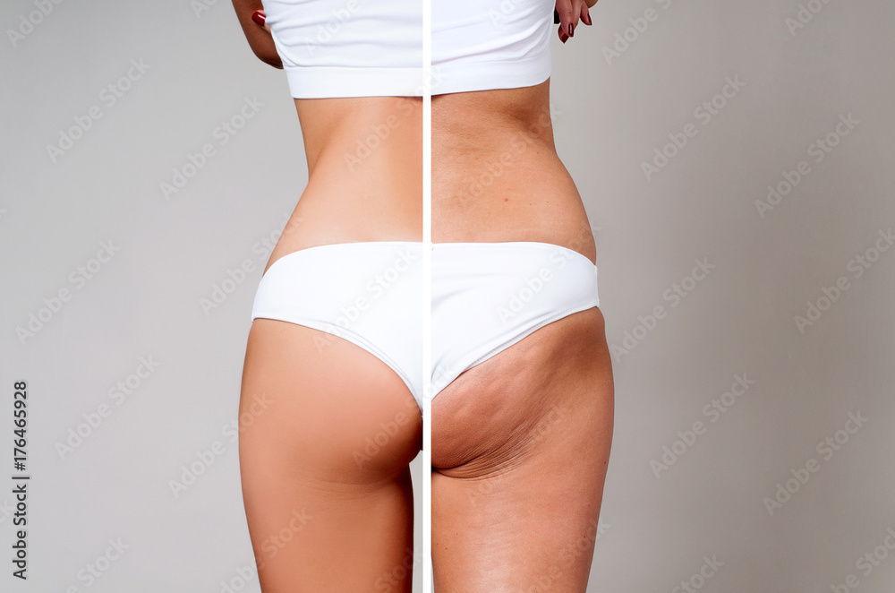 Fototapety, obrazy: Female body before and after treatment. Plastic surgery.