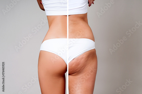 Fotografía  Female body before and after treatment. Plastic surgery.