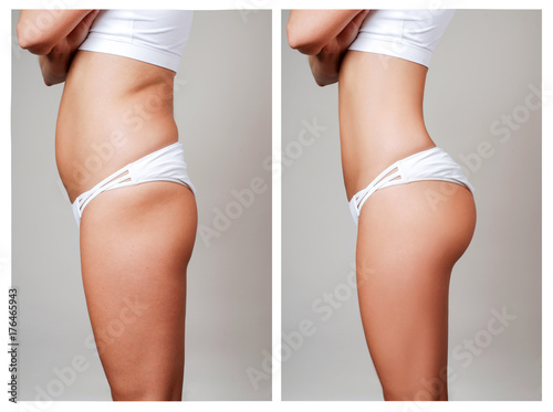Obraz Female body before and after treatment. Plastic surgery. - fototapety do salonu