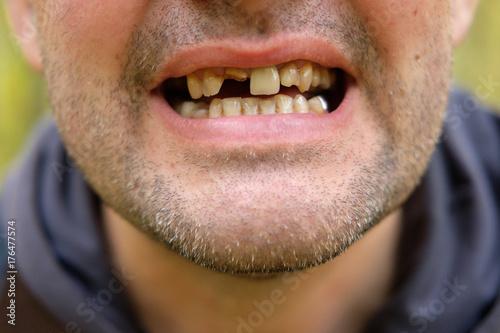 Fototapeta problems with teeth men of the European race