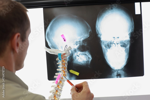 Anatomy study with spine model and x-ray of skull – kaufen Sie ...