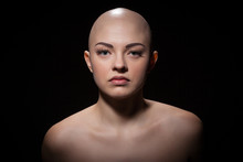 Portrait Of A Bald Girl On A B...