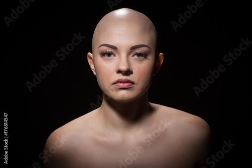 Obraz na plátně Portrait of a bald girl on a black background.