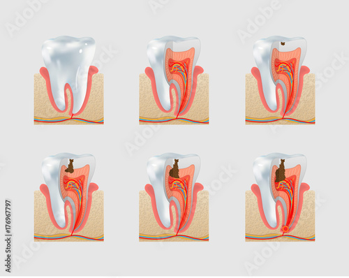 Slika na platnu Vector healthy tooth and dental caries icon set