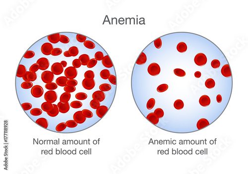 The difference of Anemia amount of red blood cell and normal Wallpaper Mural