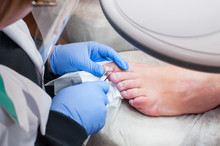 Podology Treatment. Podiatrist Treating Toenail Fungus. Doctor Removes Calluses, Corns And Treats Ingrown Nail. Hardware Manicure. Health, Body Care Concept. Selective Focus