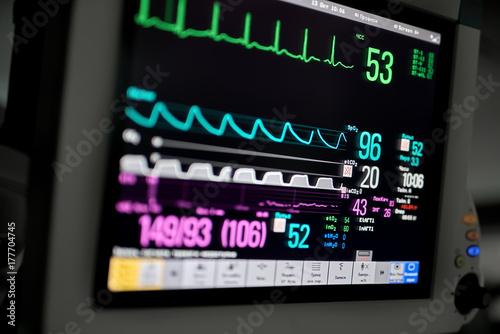 Fotografie, Obraz  Macro photo of EKG monitor