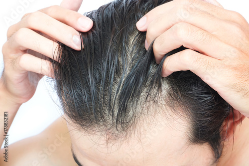 Valokuva  Young man serious hair loss problem for health care medical and shampoo product