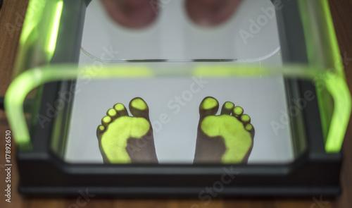 Fotografija  analisi postura ed euilibrio con scansione dell'impronta del piede