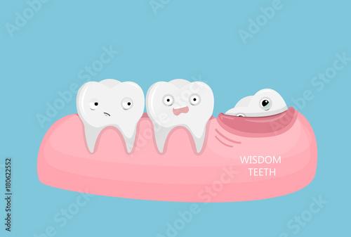 Fotografía  Wisdom teeth illustration.