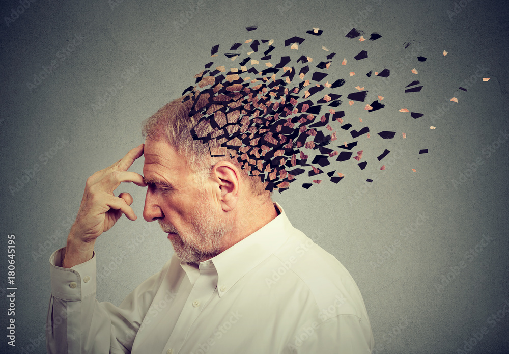 Fototapety, obrazy: Memory loss due to dementia. Senior man losing parts of head  as symbol of decreased mind function.