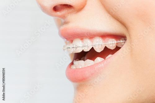 Fotografie, Obraz  Woman's smile with clear dental braces on teeth