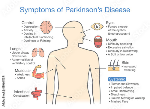 parkinson's disease symptoms and signs  illustration about medical diagram