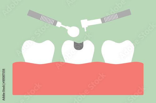 Fotografering tooth amalgam filling with dental tools