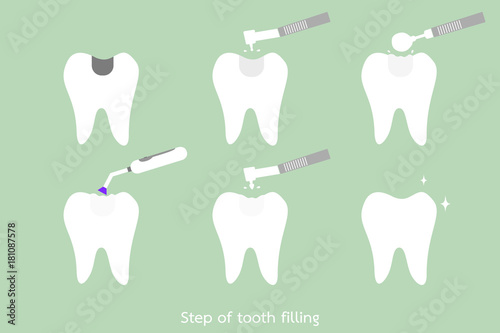 Fotografia, Obraz  step of caries to tooth amalgam filling with dental tools