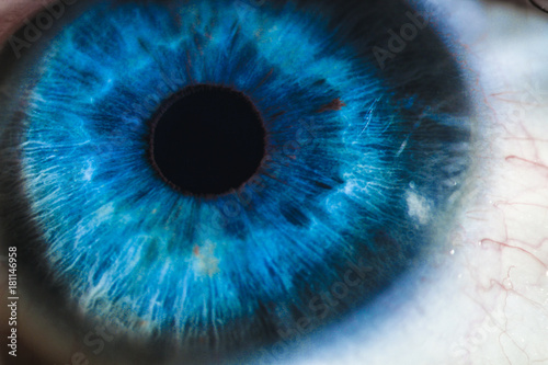 Door stickers Iris An enlarged image of eye with a blue iris, eyelashes and sclera. the shot is made by a slit lamp with a built-in camera