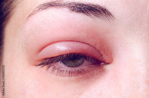 Barley infection on the eye Canvas Print