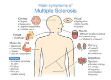 Main Symptoms Of Multiple Scle...