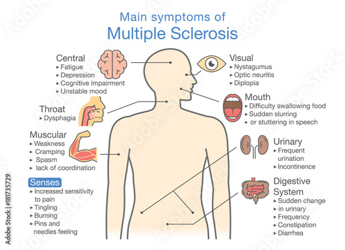 Main Symptoms Of Multiple Sclerosis Illustration About Medical
