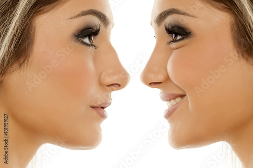 Valokuva  Comparison of female nose, before and after plastic surgery