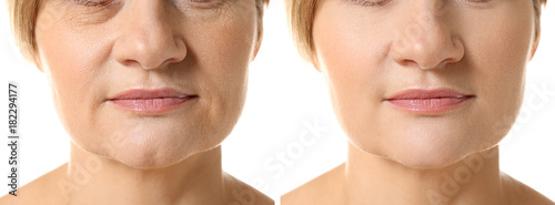 Tablou Canvas Mature woman before and after biorevitalization procedure on white background