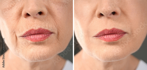 Senior woman before and after biorevitalization procedure, closeup Fototapet