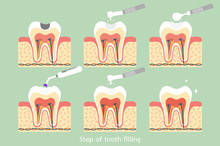 Step Of Caries To Tooth Amalga...
