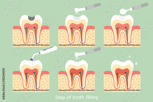Fotografering  step of caries to tooth amalgam filling with dental tools