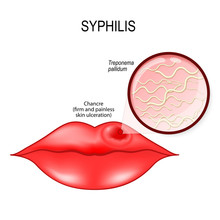 Syphilis. Human Lips With Chan...