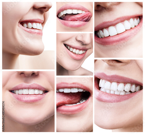 Collage of women with healthy teeth. #183484374