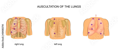 auscultation of the lungs Canvas Print