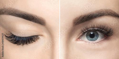 Fotografie, Obraz  Eyelash removal procedure close up