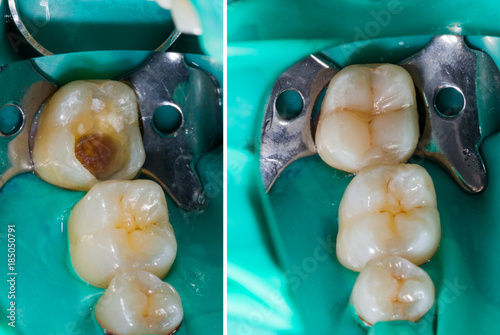 Photographie  Mimicking Nature In Dentistry