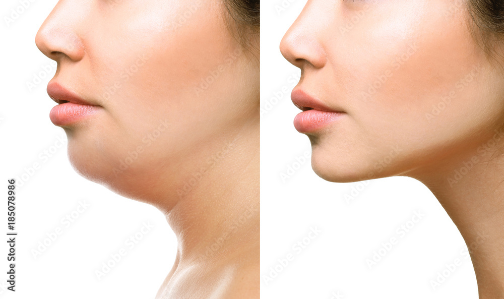 Fototapety, obrazy: Part of face, woman with the double and perfect chin